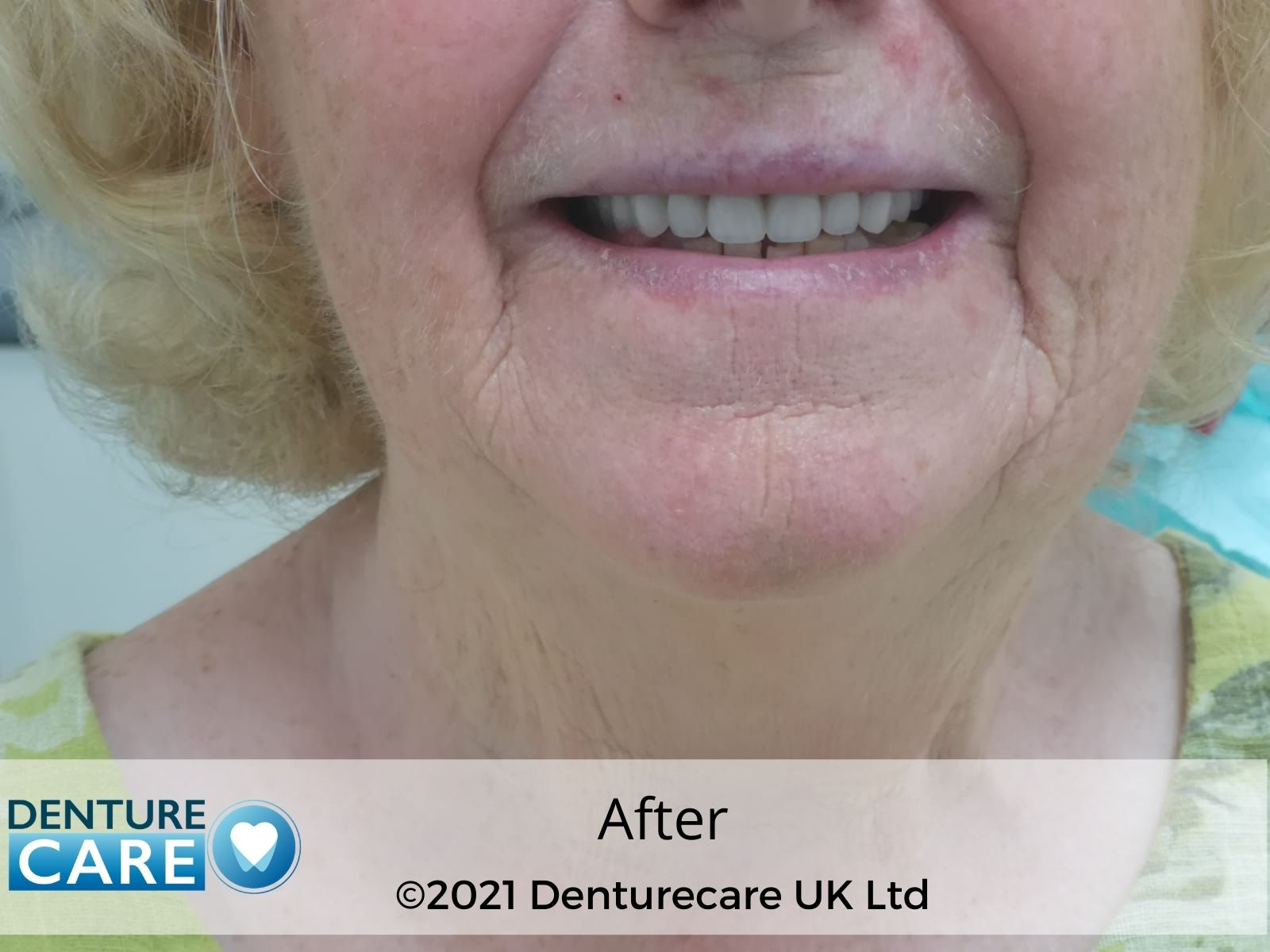Dentures before and after photos