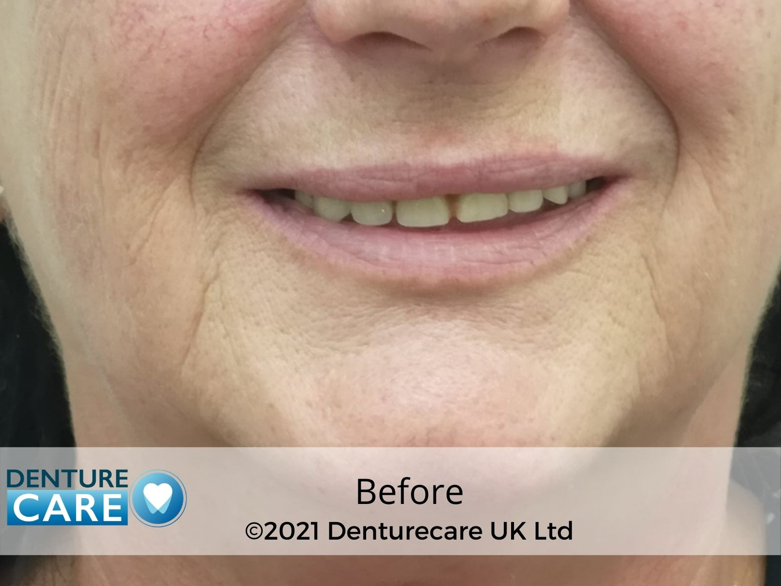 before denture photo