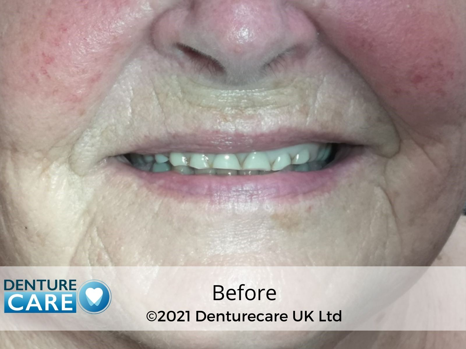 Before and aftter dentures
