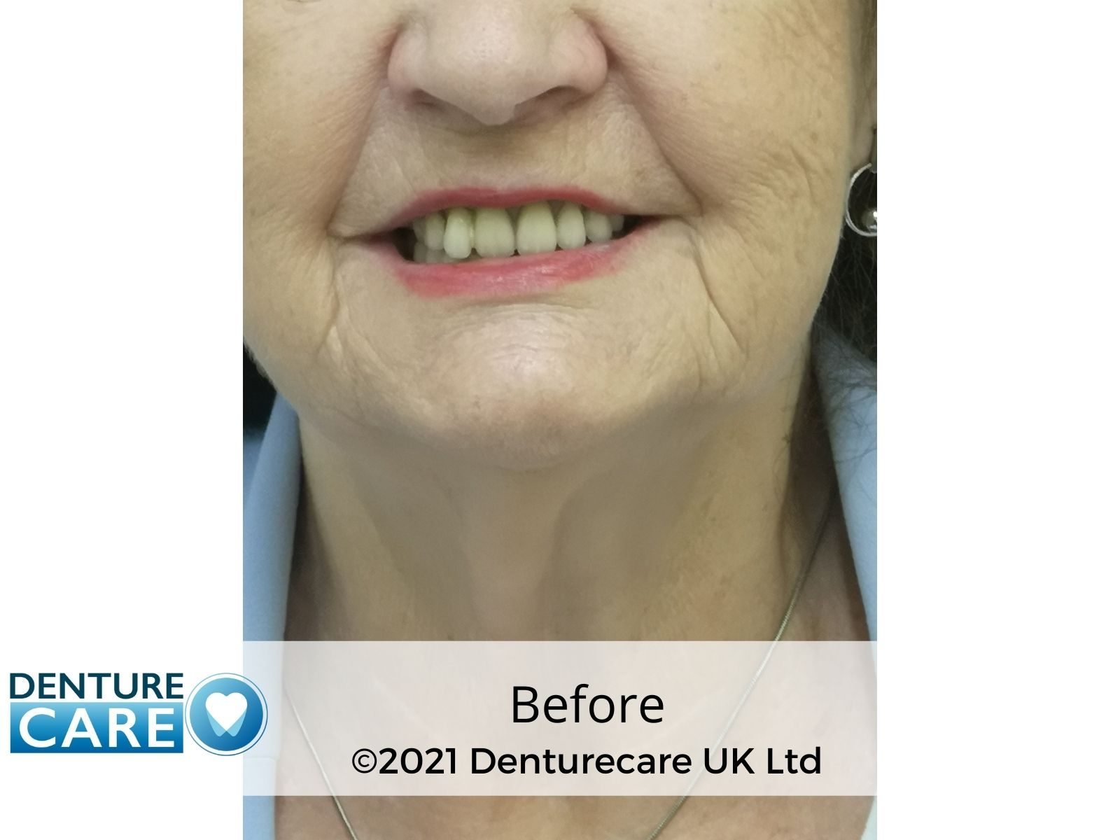 Before and after denture photo